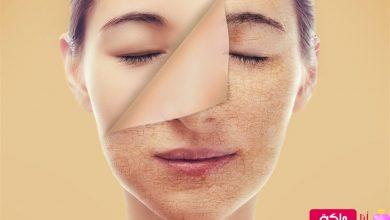 تقشير الوجه
