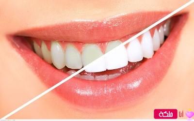 وصفة لتبيض الأسنان من أول مرة